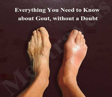 Everything You Need to Know about Gout, without a Doubt